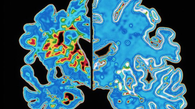 _85434840_m1080437-sectioned_brains_alzheimer_s_disease_vs_normal-spl